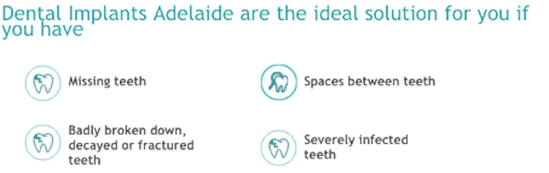 Dental Impants Benefits